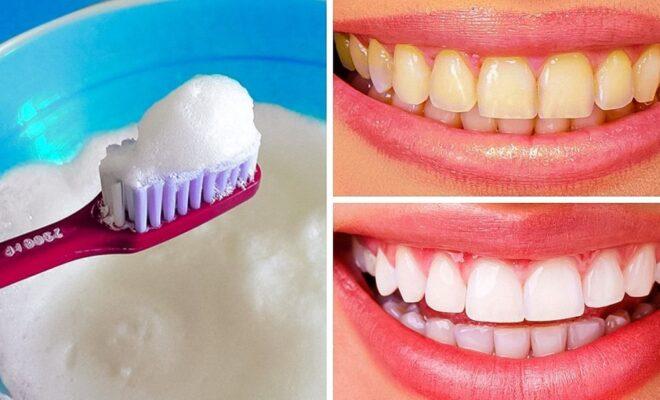 Rid of yellow teeth